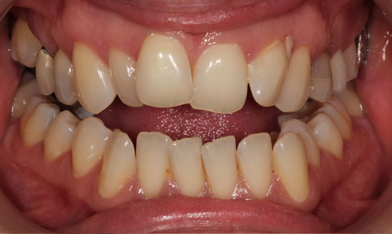 dental whitening