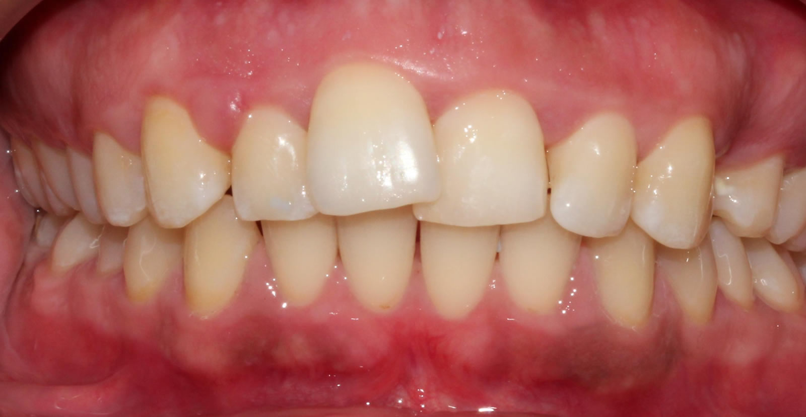 Six months smiles implants